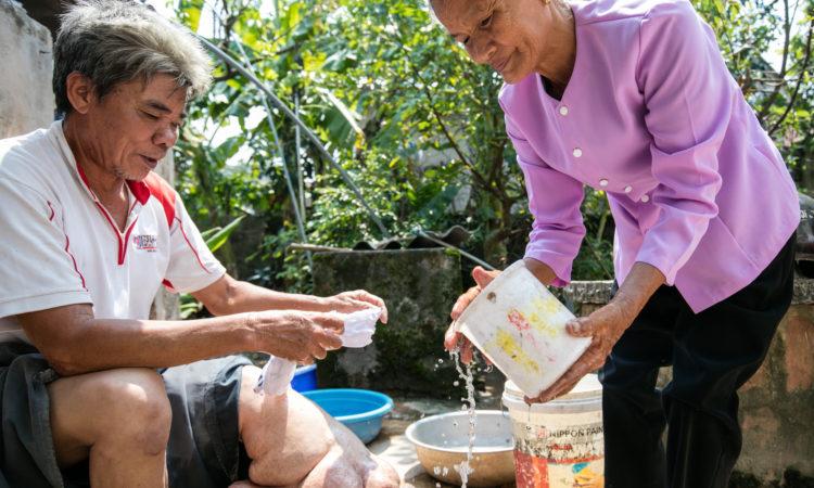 Một bệnh nhân vệ sinh phần chân bị phù bạch huyết do bệnh giun chỉ bạch huyết gây ra.